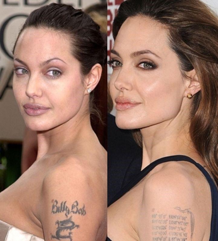 Las Cirugías de Angelina Jolie