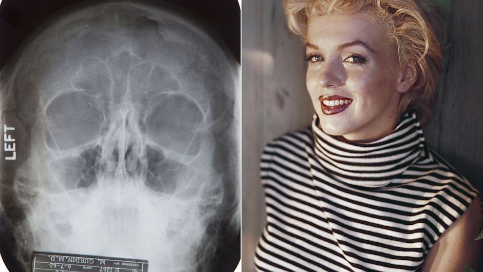 Marilyn Monroe Operaciones de Cirugía Estética