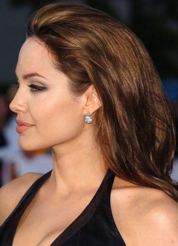 El Mentón de Angelina - Operación de Mentón - Mentoplastia