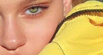 Cantopexia, la Cirugía que Rasga los Ojos