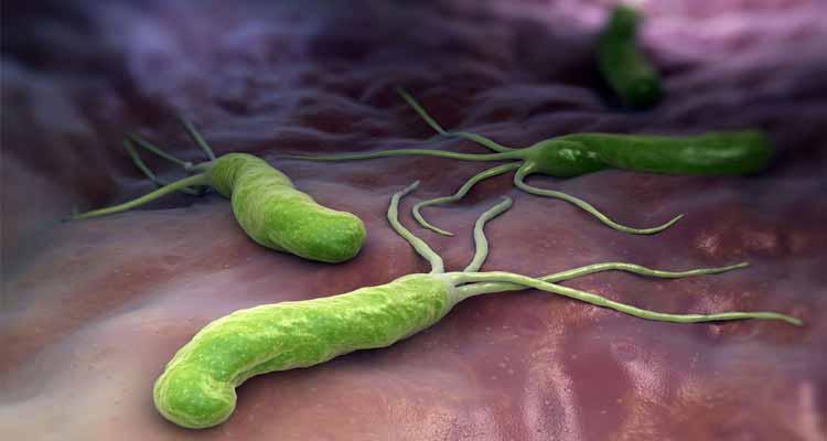 Helicobacter Pylori Qué Es