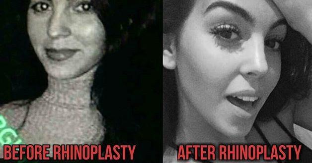 Georgina Rodríguez Antes y Después