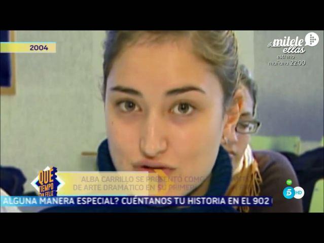 Alba Carrillo Nariz Antes