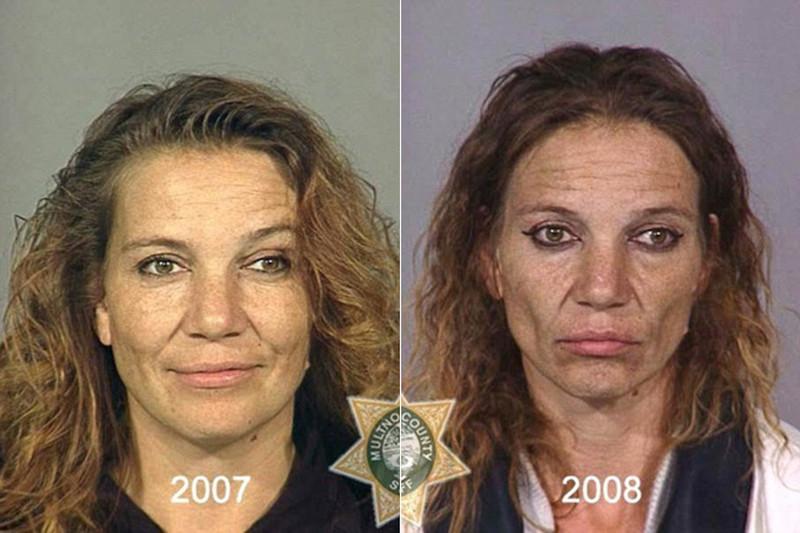 Metanfetamina Antes y Después